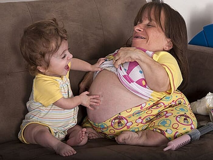 Stacy Herald - world's smallest women to give birth