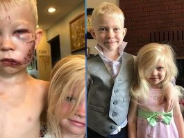 A 6-Year-Old Boy Saved His Sister from a Dog Attack
